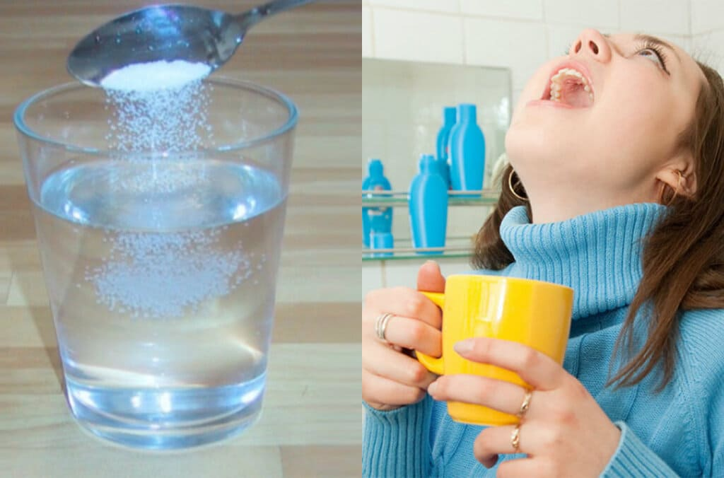 súc miệng nước muối làm trắng răng không