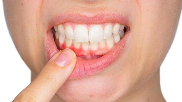 công dụng của nước súc miệng - Dr.Muối