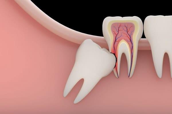 bệnh răng khôn biến chứng