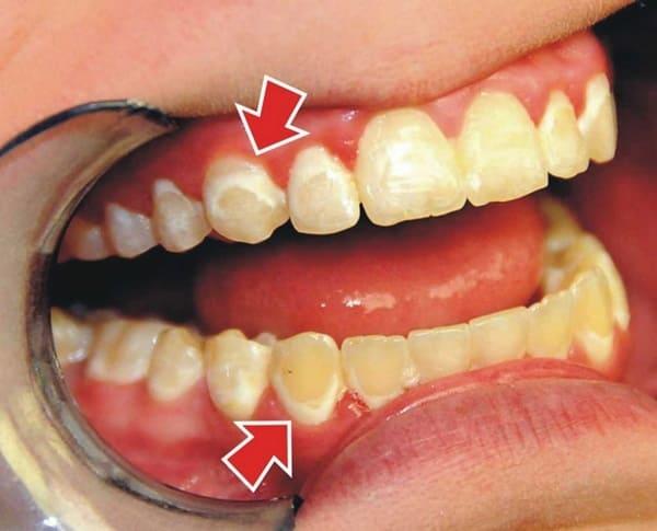 bệnh viêm nha chu răng miệng