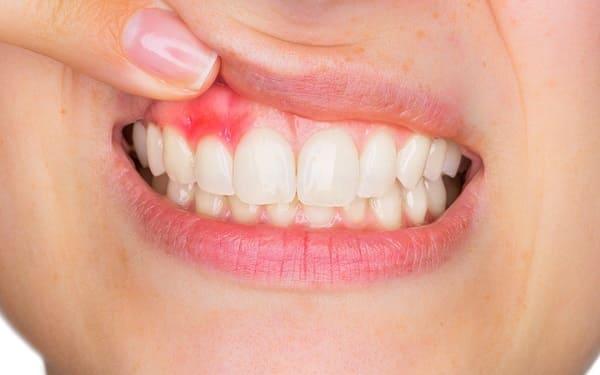 bệnh viêm nướu răng
