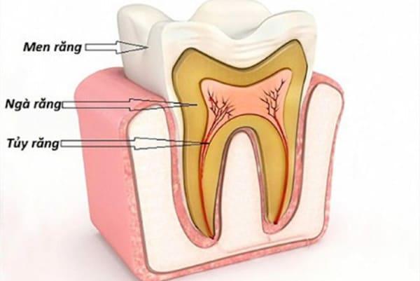 bệnh viêm tủy răng