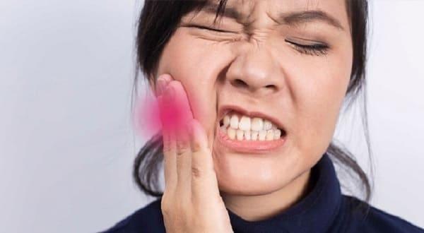 bị viêm lợi trùm răng khôn