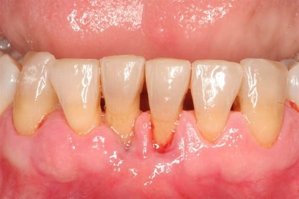 các căn bệnh về nướu răng miệng