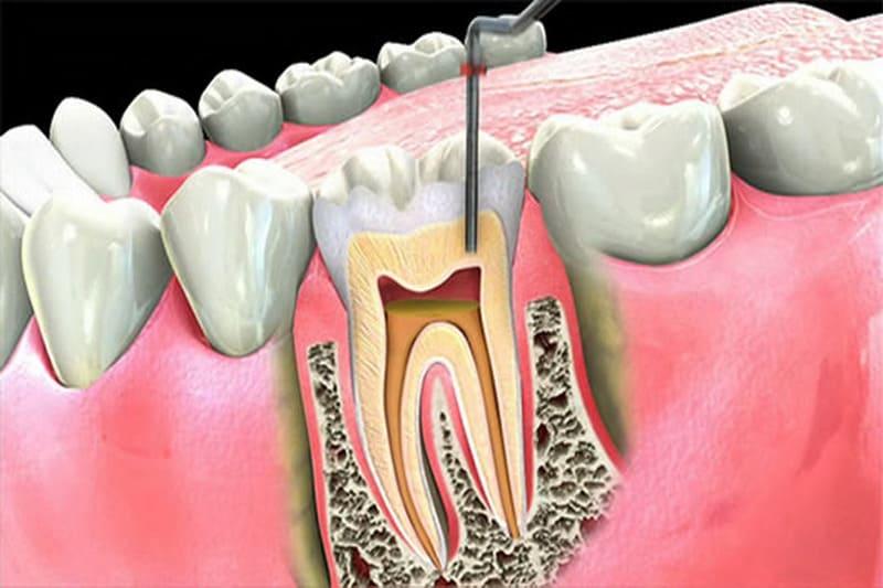 cách chữa viêm tủy răng