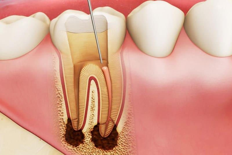 chữa viêm tủy răng