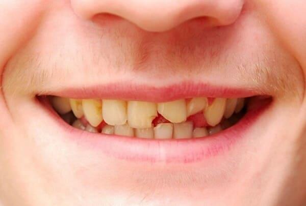 hình ảnh răng bị mẻ