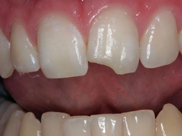 những bệnh về răng miệng