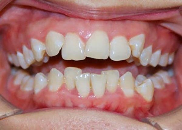 Răng mọc quá khít