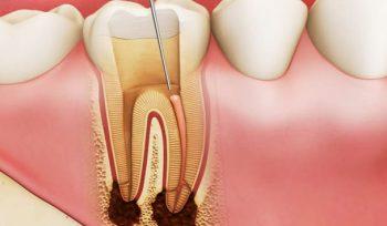 sâu răng là bệnh gì