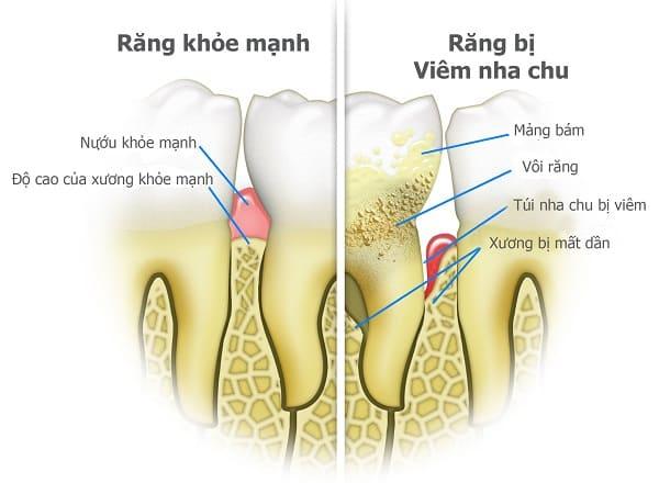 so sánh viêm nha chu và răng thường