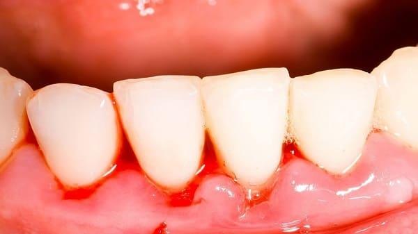 tình trạng viêm nướu răng nghiêm trọng