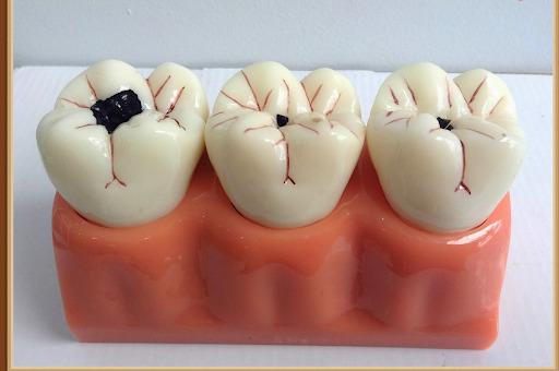 trị viêm tuỷ răng