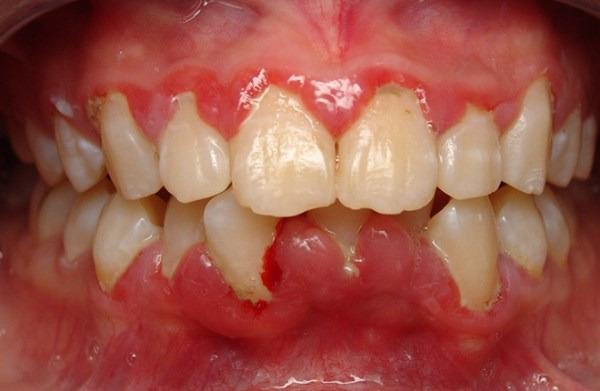 viêm chân răng - Dr.Muối