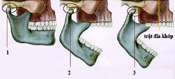 viêm khớp thái dương hàm