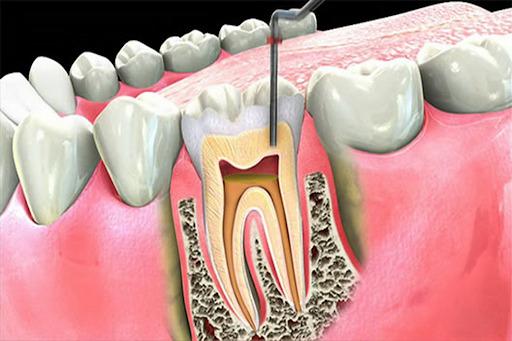 viêm tuỷ răng cấp