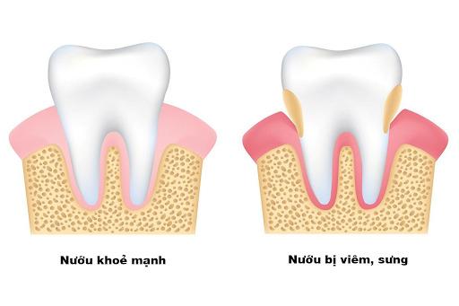 viêm tuỷ răng có hồi phục không