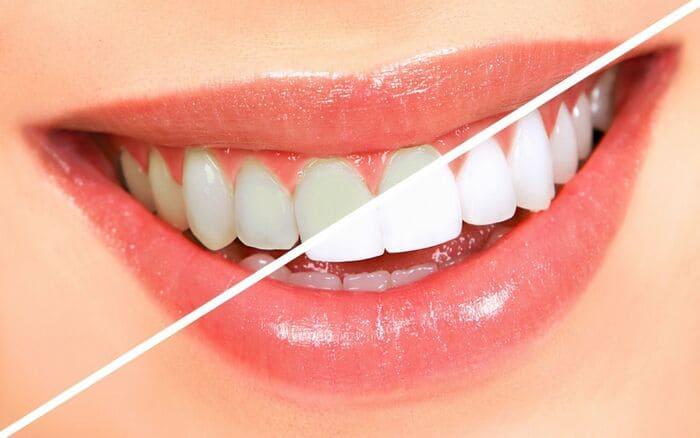 đánh răng bằng muối để tẩy trắng răng