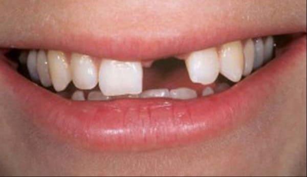 mảng bám đen ở chân răng