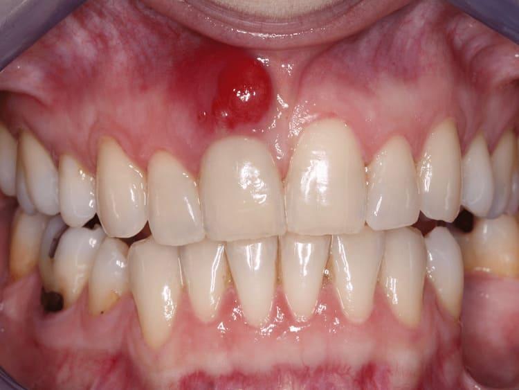 mủ chân răng
